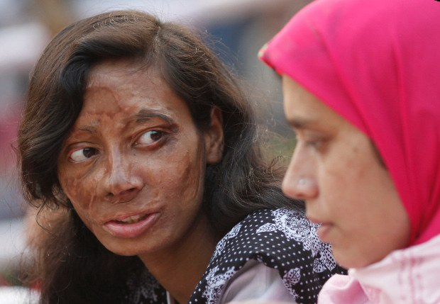 BD-women-violence-acid620.JPG