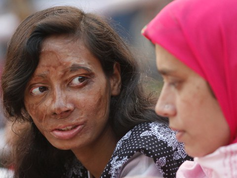 A survivor of an acid attack takes part in an awareness rally about violence against women in Dhaka, Nov. 24, 2010.